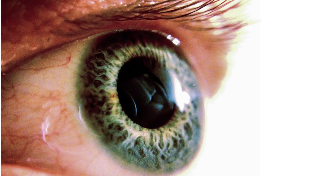 Un robot-chirurgien a réussi à opérer à l'intérieur d'un oeil