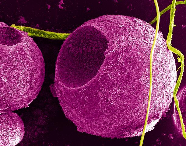 On pourra bientôt mincir en bombardant les zones graisseuses de nanoparticules