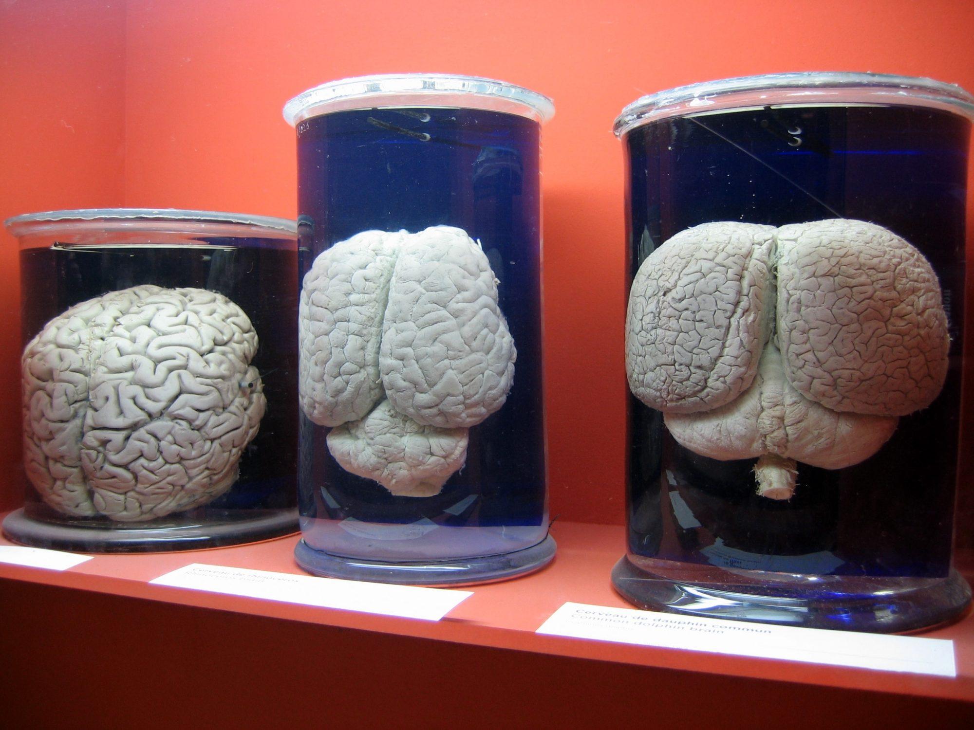 Madeline cultive des cerveaux humains