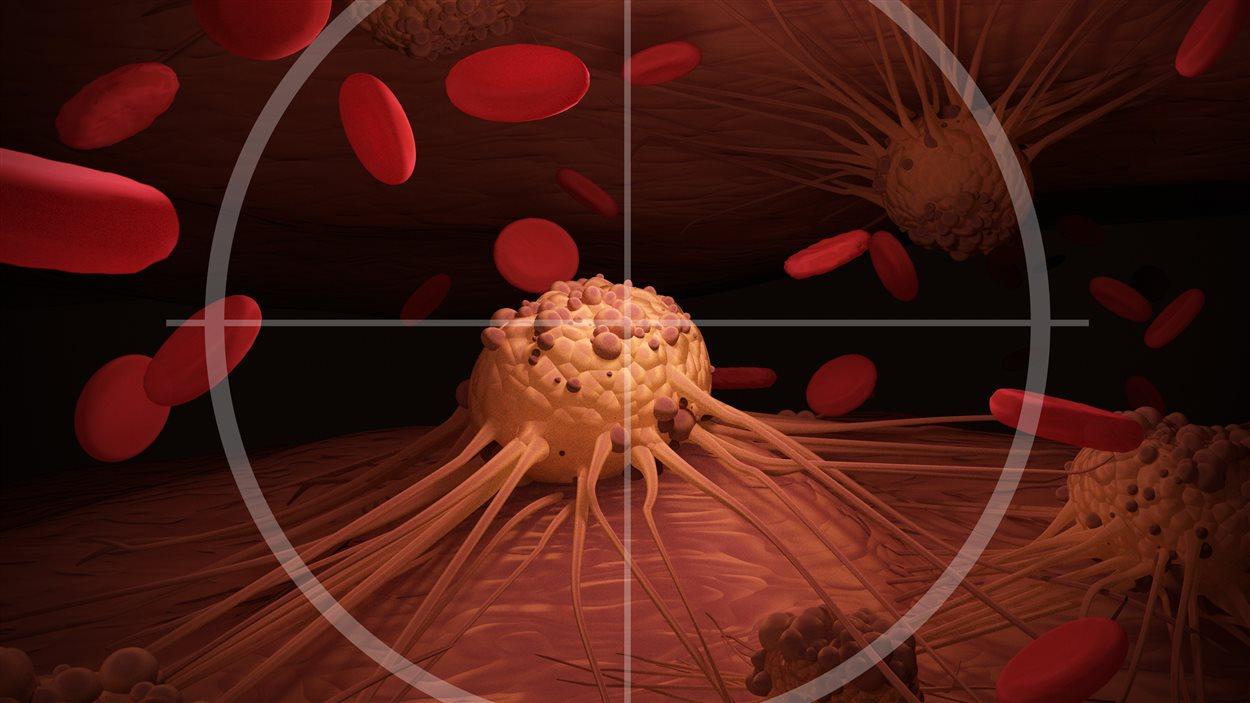 Un traitement révolutionnaire pourrait vaincre le cancer en un mois