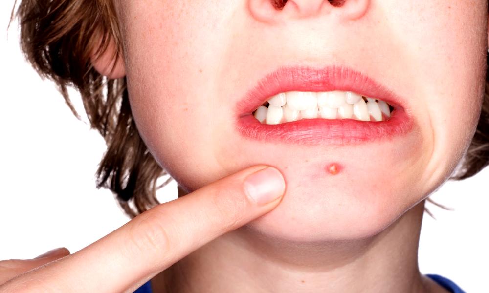 Le vaccin contre l'acné arrive et il va tout péter